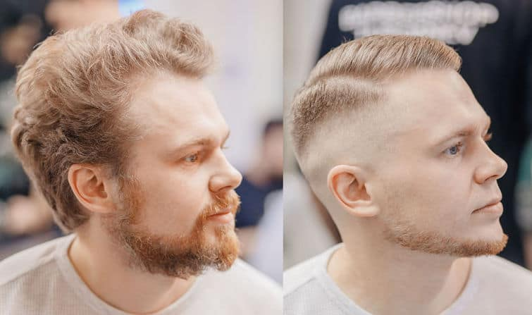 Before and after, receding hairline with a buzz cut