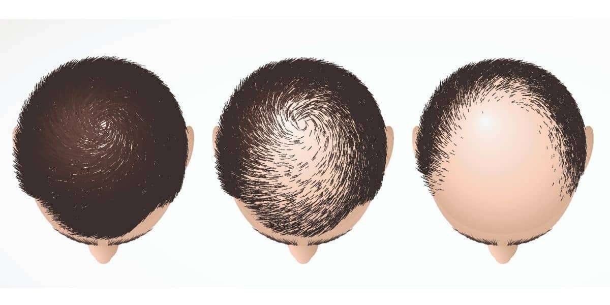illustration of hair loss pattern